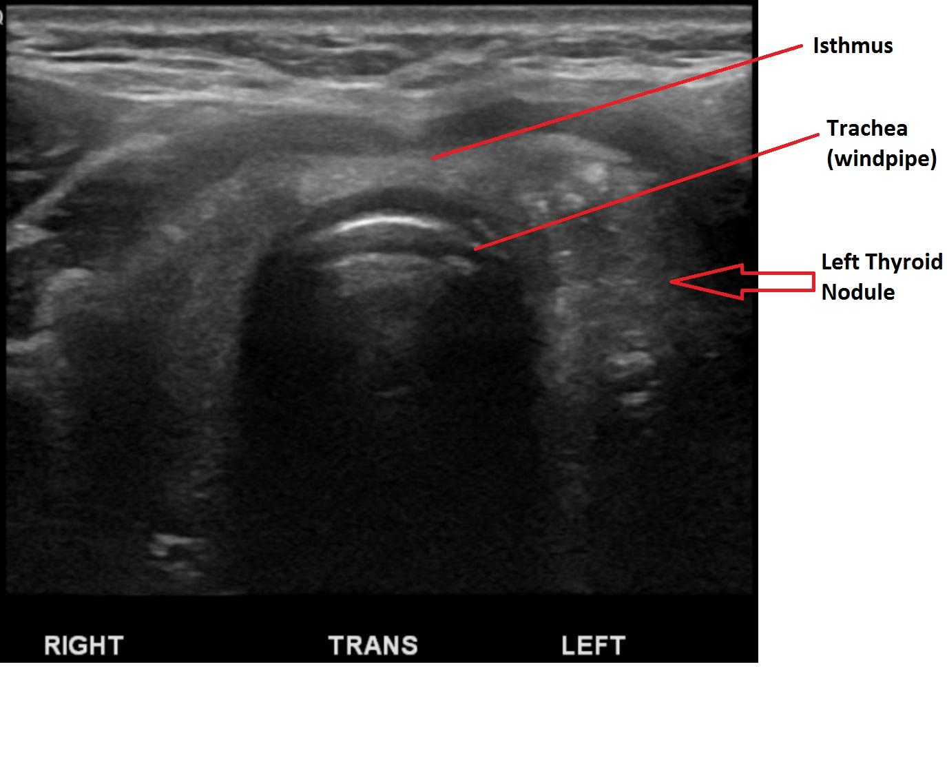 thyroid parathyroid patient education website